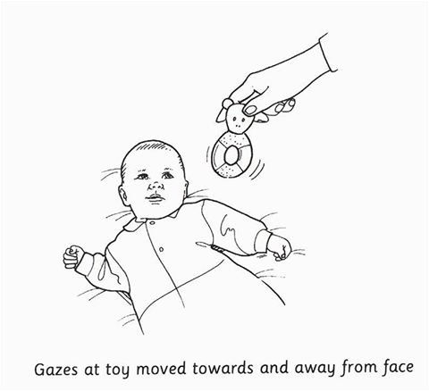 At what age child can gaze at toy moved towards and away from face?